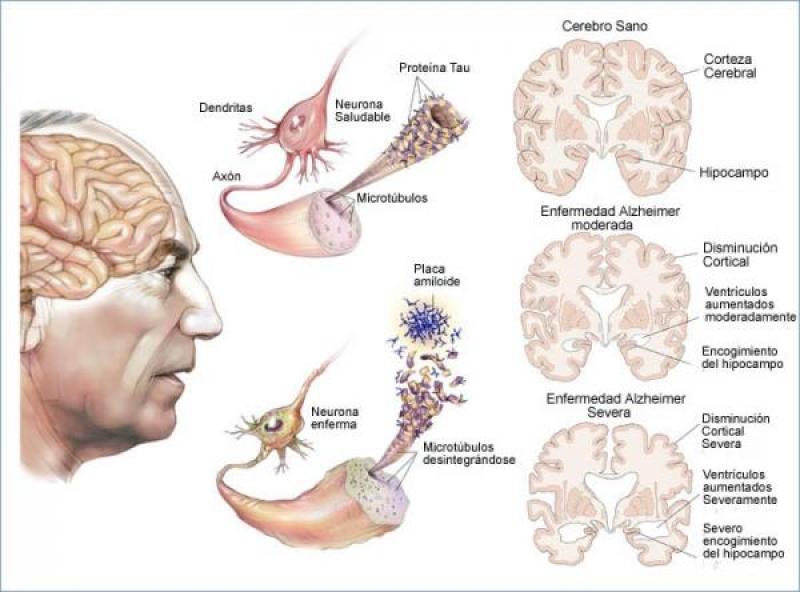 Resultado de imagen para enfermedad de alzheimer